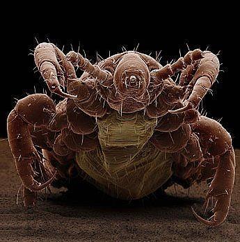 крупные паразиты в организме человека лечение видео