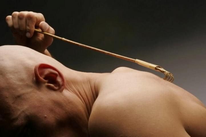 Типичным является зуд или жжение в месте укуса