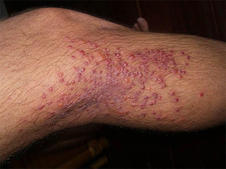 Блохи, как правило, кусают человека в определенных местах. Это, чаще всего, места, где кожа наиболее тонкая – подколенные и подмышечные впадины, талия, ноги (особенно часто укусы появляются на верхней стороне стопы и по бокам от пяточной кости)