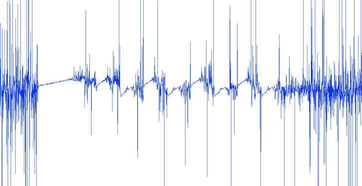 Ультразвук – звуковые волны, имеющие частоту выше воспринимаемым человеческим ухом, обычно, под ультразвуком понимают частоты выше 20 000 Герц