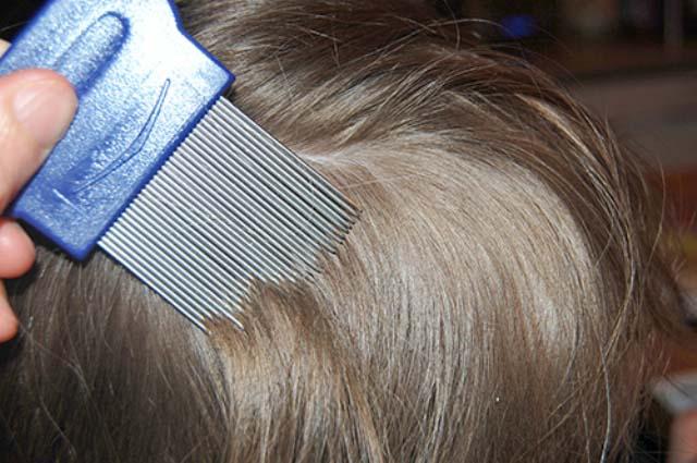 При механическом способе избавления от паразитов волосы ополаскивают 5-процентным раствором уксуса, а потом производят вычесывание частым гребнем