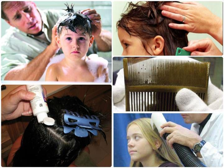 Чтобы избавиться от вшей применяют обработку волос специальными противопедикулезными шампунями или спреями и последующее механическое вычесывание гнид