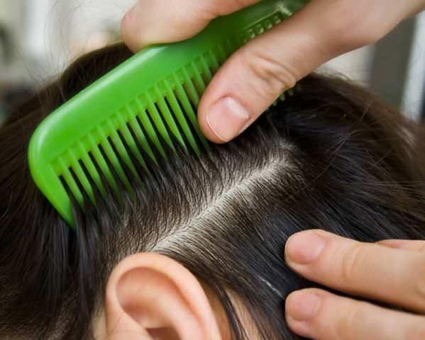 Чаще всего появляются вши и гниды в длинных волосах