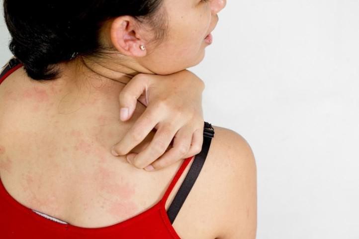 Зуд – один из признаков начала аллергической реакции на укус блохи