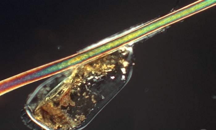 Гниды – это мелкие круглые капсулы с особым креплением для волоса в нижней части