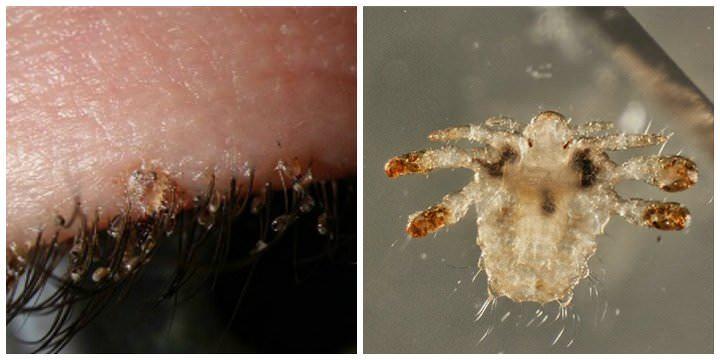 Половые вши могут поселиться на ресницах и бровях