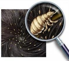 Педикулёз, или pediculosis большинству обывателей знаком под термином «вшивость»