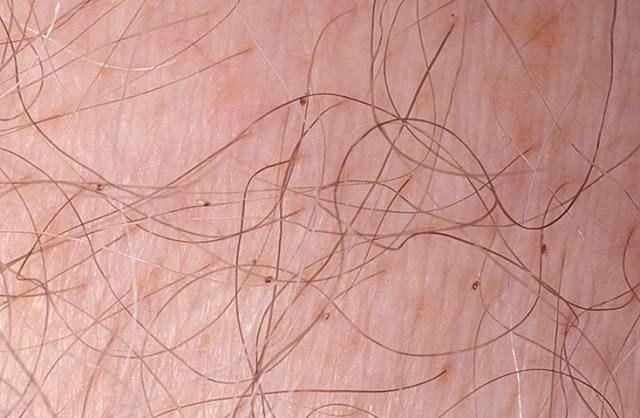 Зуд приводит к постоянному расчесыванию мест укуса. От этого очень быстро появляются повреждения кожи, в которые может попасть инфекция