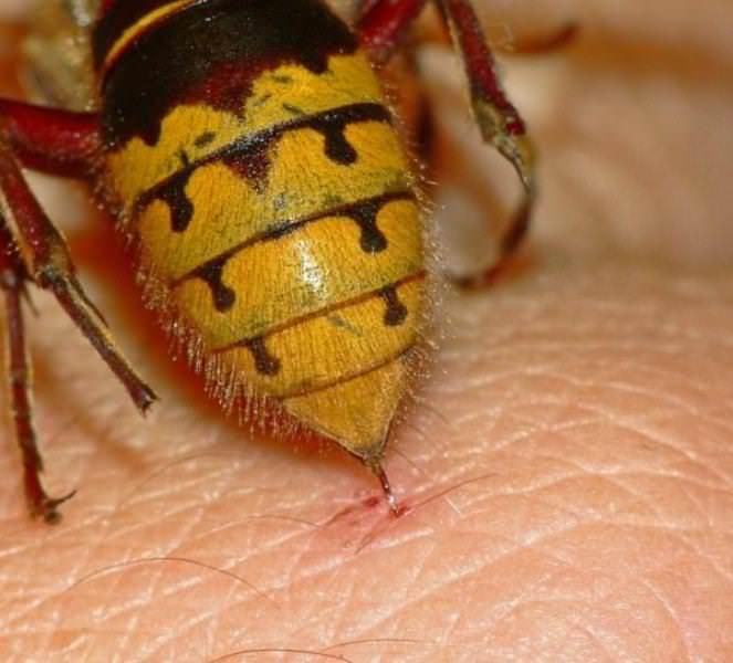 Считается, что укус осы от пчелиного отличается тем, что оса не оставляет в ранке свое жало. В большинстве случаев так и происходит. Но иногда жало все же может находиться в коже