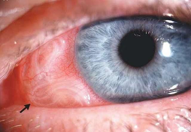 паразиты под кожей человека симптомы как прыщи