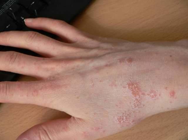 Чесоточный клещ вызывает чесотку – заболевание, хорошо знакомое еще 50 лет назад