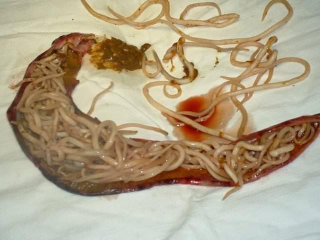 Мочеполовой шистосомоз поражает кожу и мочеполовые органы