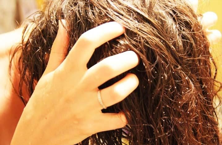 Из-за тяги клюквенного сока к стеканию, макушку головы придется обрабатывать сильнее и чаще