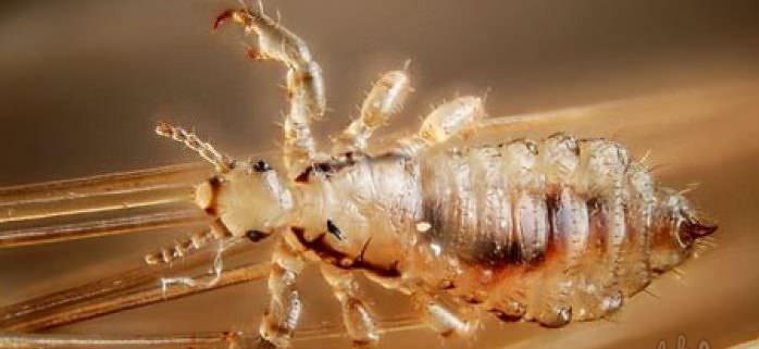 К волосам насекомые прикрепляются при помощи ножек с коготками