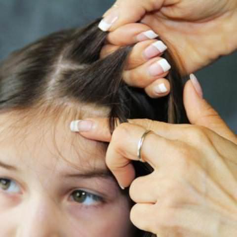 паразиты волосистой части головы человека фото