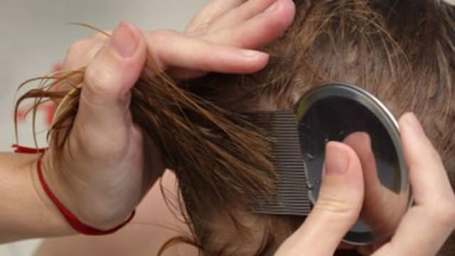 Рассматривая волосы и кожу головы, нужно обратить внимание на следы от укусов